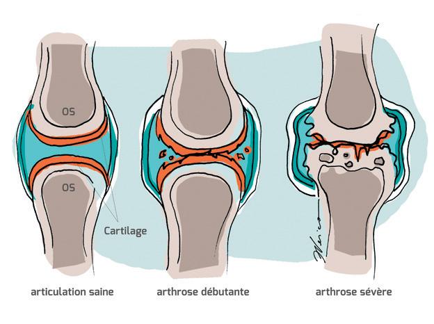 arthrose maladie chronique et affection d g n rative qui touche le cartilage. Black Bedroom Furniture Sets. Home Design Ideas